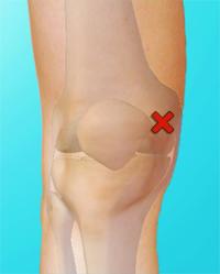 Plicas repliegues sinoviales en la rodilla ortopedia deportiva - Dolor en la parte interior de la rodilla ...